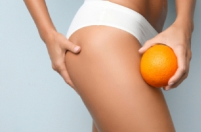 Cellulite, aspect peau d'orange